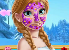 Frozen Anna no Spa das Flores